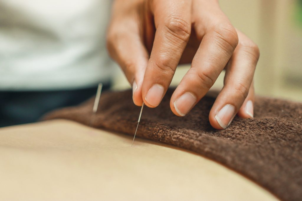 Acupuncture needles for woman's body. Alternative medicine.